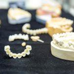 smilesrforever-implant-snap-in-dentures